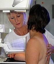 mammografia e prevenzione