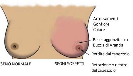 Sintomi tumori al seno