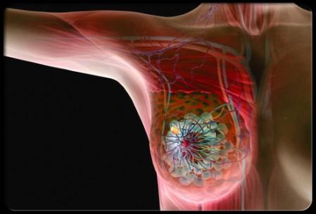 Illustrazione del tumore al seno