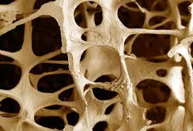 osteoporosi e gravidanza