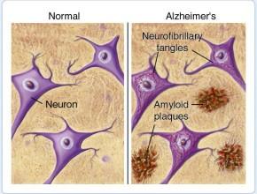 cosa è l'Alzheimer