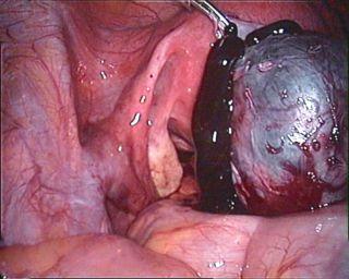 dismenorrea ed endometriosi